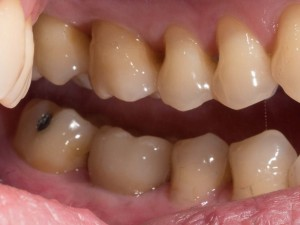 Can you guess which tooth is the dental implant crown? It's the second one from the left on the lower arch.
