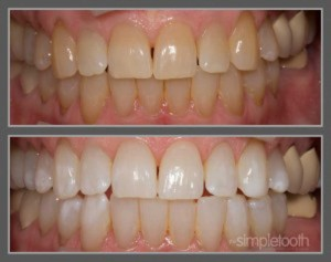 Kor Max Whitening can treat even impossible tetracyline staining