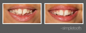 Before and After: Composite resin bonding for a chipped front tooth