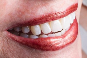 Actual tooth whitening case done by Dr. Le